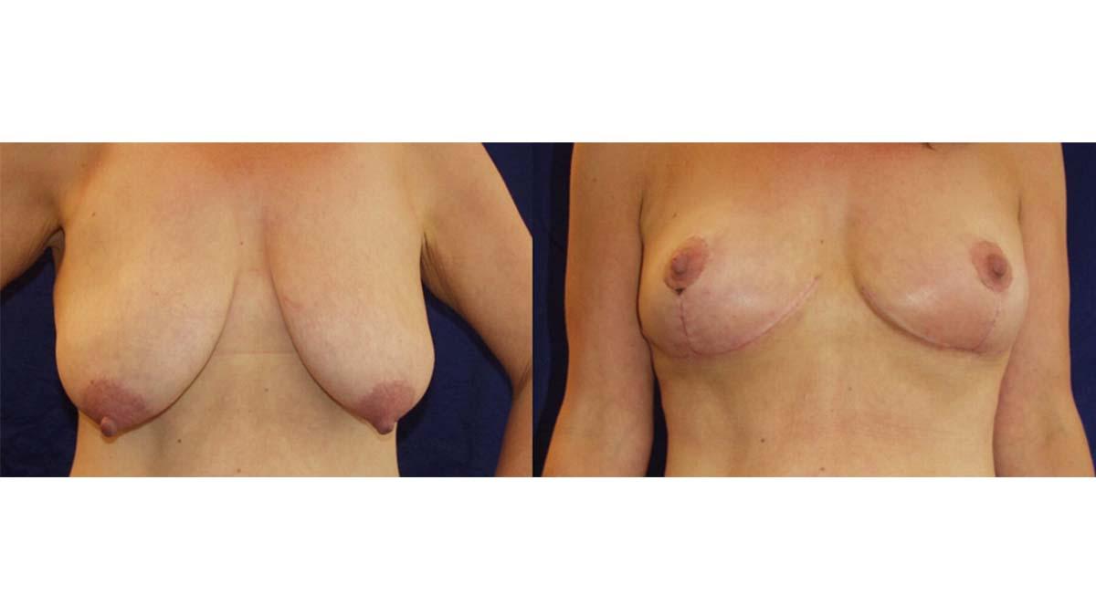 2.Breast-Lift (1)