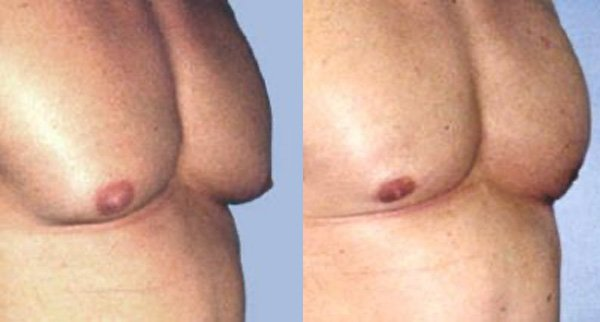 2.Gynecomastia (1)