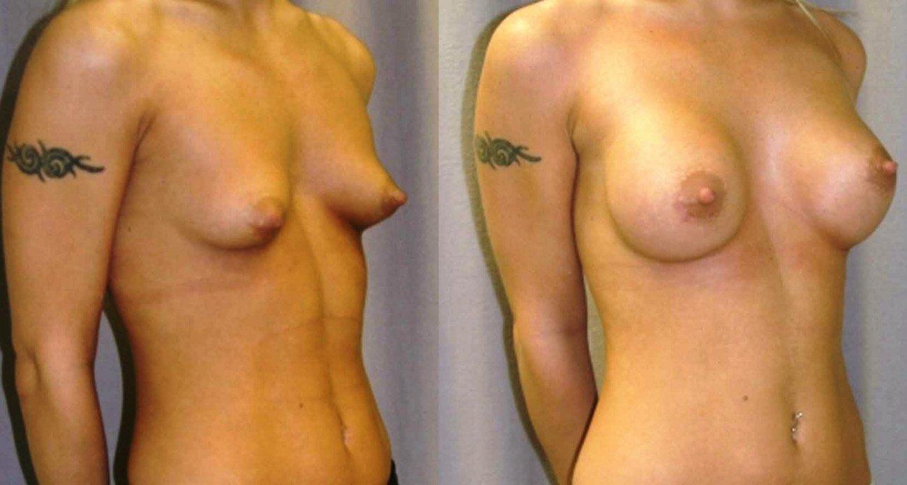 2.breast-augmentation