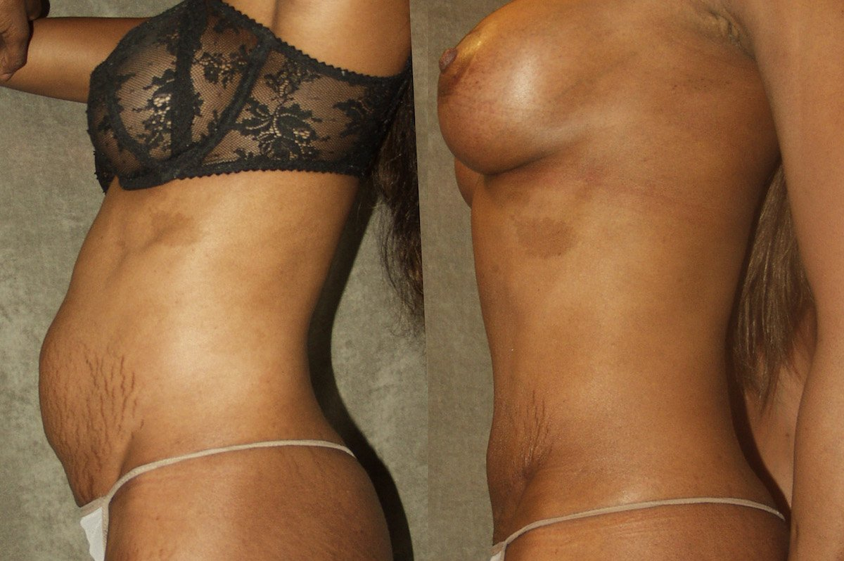 2.mm-36-year-old-Mommy-Makover-Breast-Augmentation-and-Tummy-Tuck-6-months-after-surgery-oblique-view