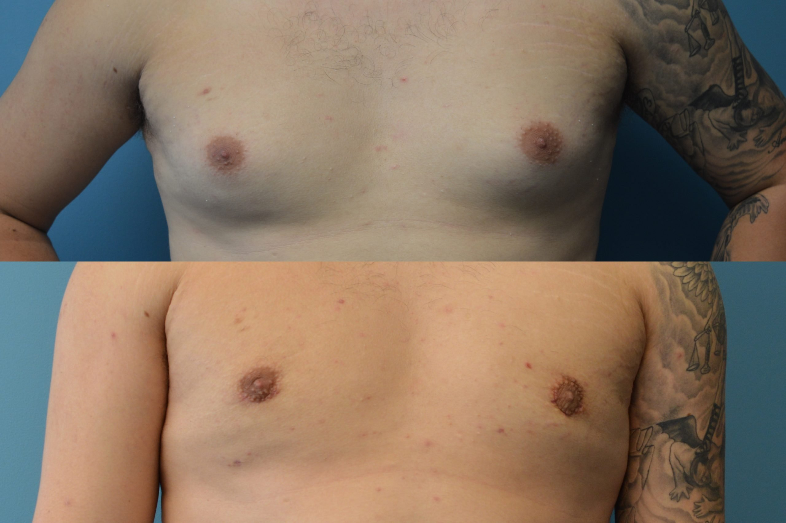 Gynecomastia 2 months after surgery excision liposuction front view