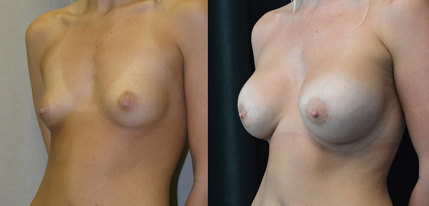 25-year-old breast augmentation 300cc Siltex periareolar incision 7 years, oblique