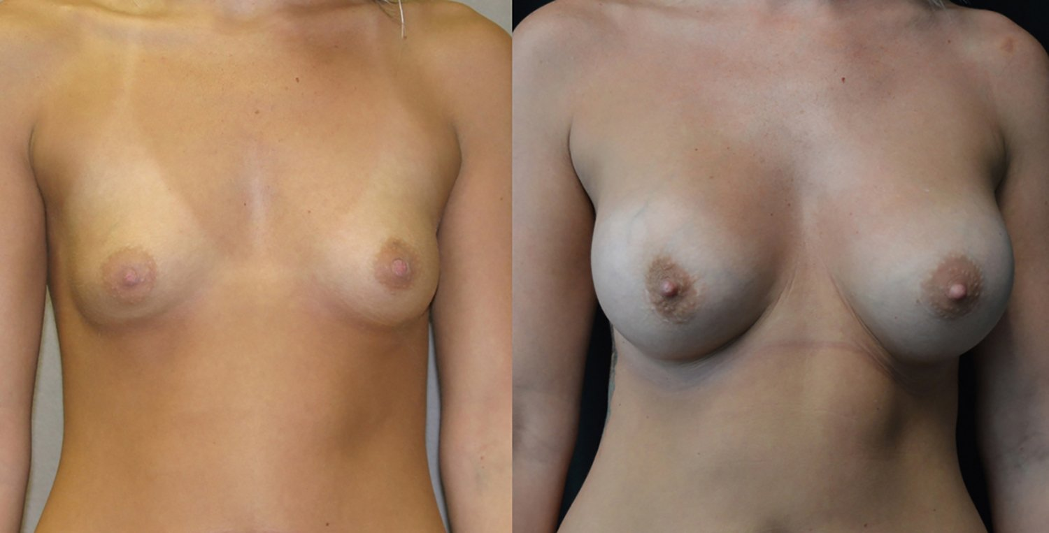 25-year-old breast augmentation 300cc Siltex periareolar incision 7 years