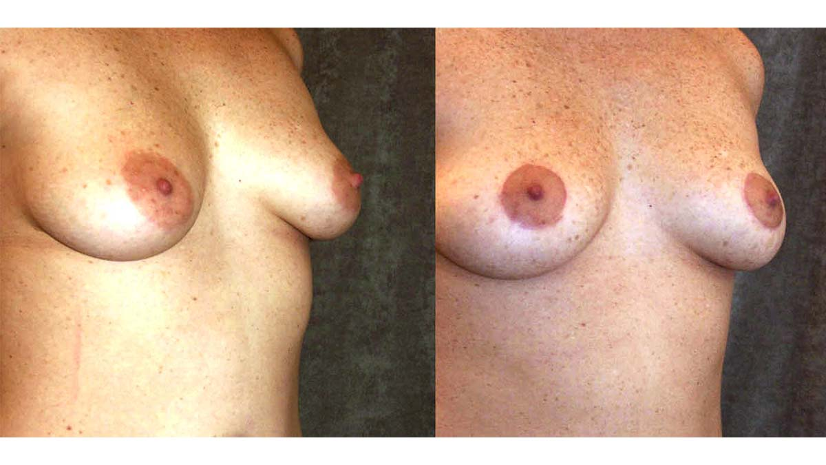 3.Breast-Lift (1)
