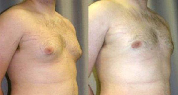 3.Gynecomastia (1)