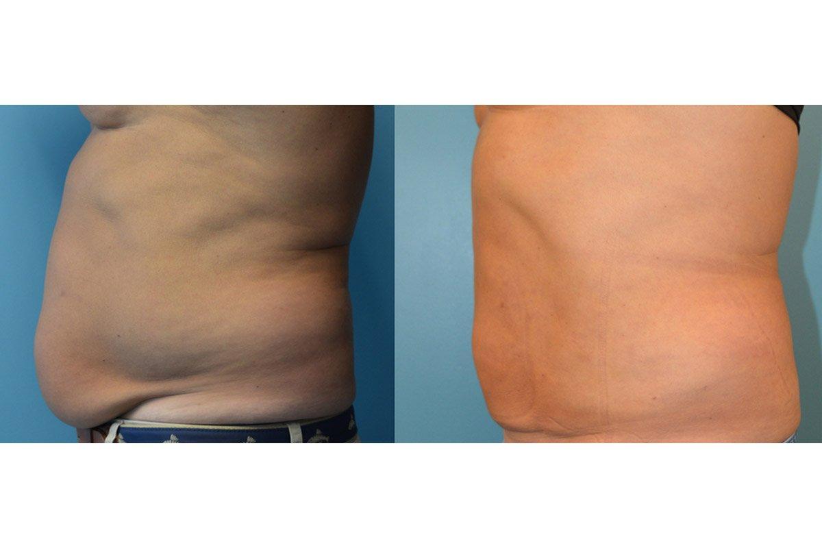 3.Liposuction-Men (1)