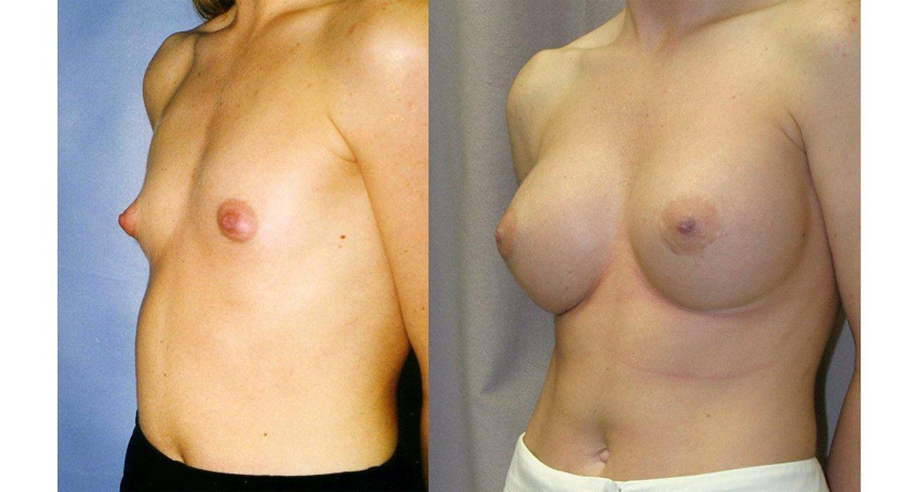 3.breast-augmentation