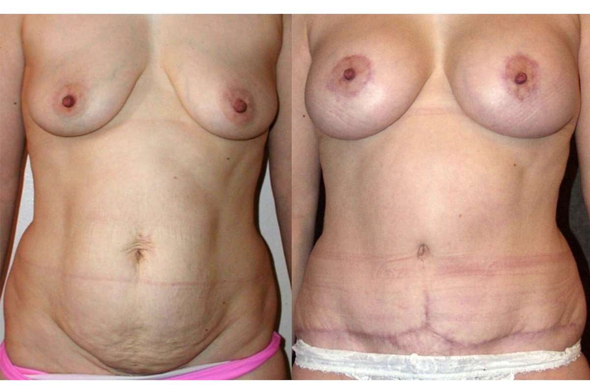 3.mm-36-year-old-Mommy-Makover-Breast-Augmentation-and-Tummy-Tuck-6-months-after-surgery-oblique-view