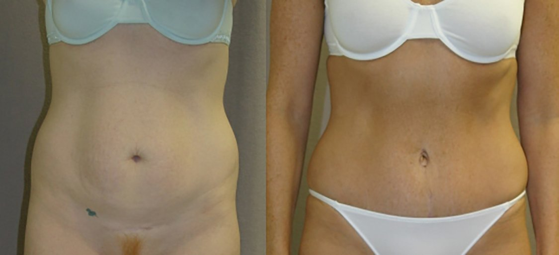 34-year-old abdominoplasty 18 months after surgery, front