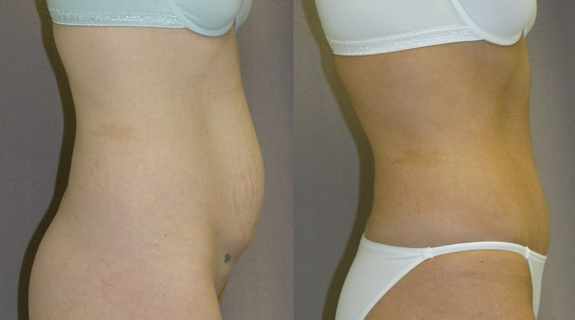 34-year-old abdominoplasty 18 months after surgery, side