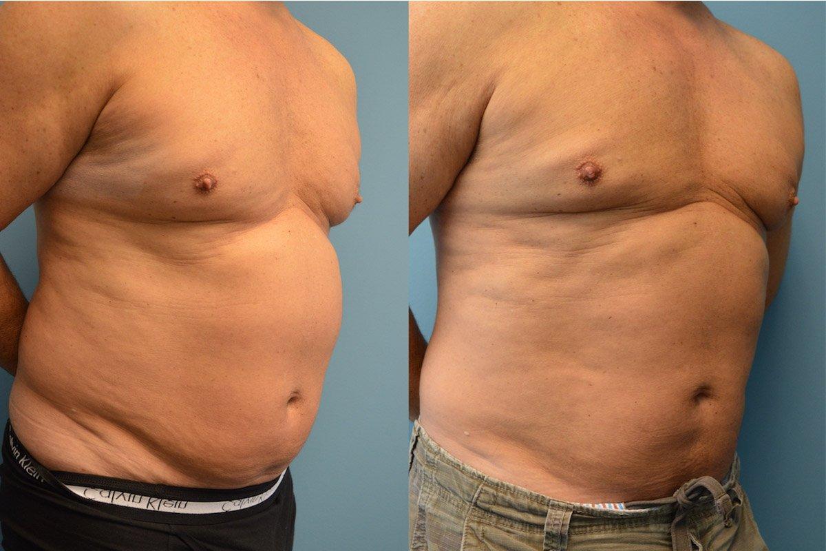 4.Liposuction-Men (1)
