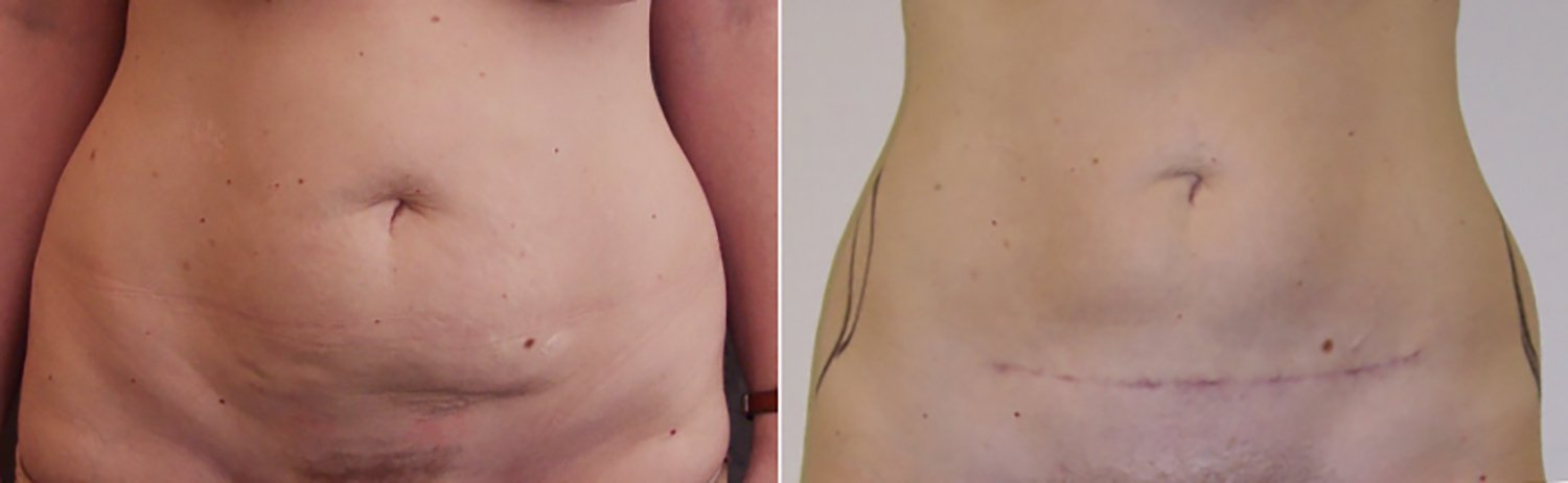 40-year-old mini tummy tuck 4 months front