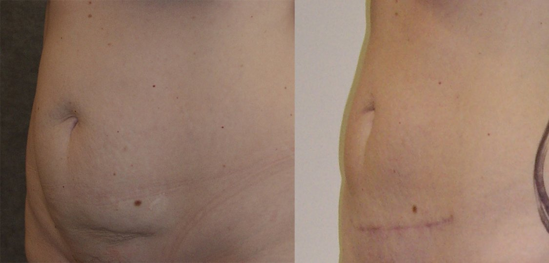 40-year-old mini tummy tuck 4 months oblique