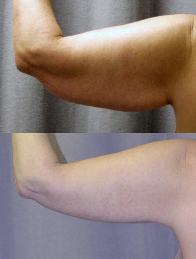 47-year-old brachioplasty, 14 months left back