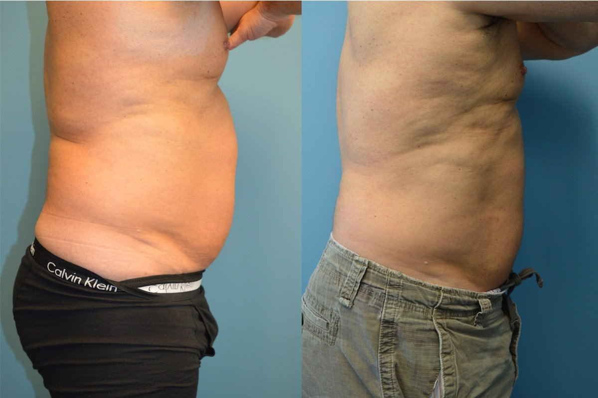 5.Liposuction-Men (1)