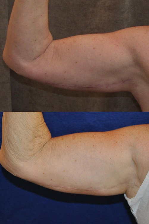 50-year-old, 2 months (above) and 13 years (below) after surgery, right front