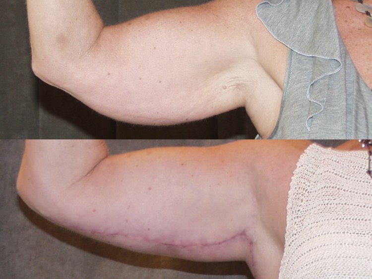 50-year-old, before and 2 months after surgery, right front