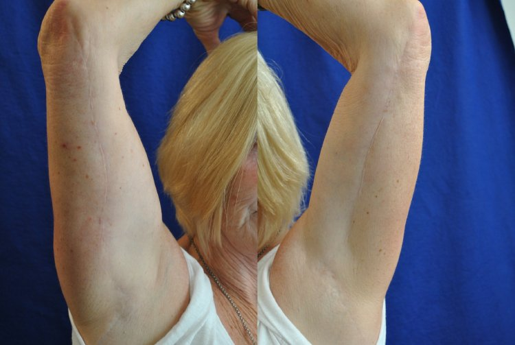 50-year-old, scars at 13 years, right and left arms