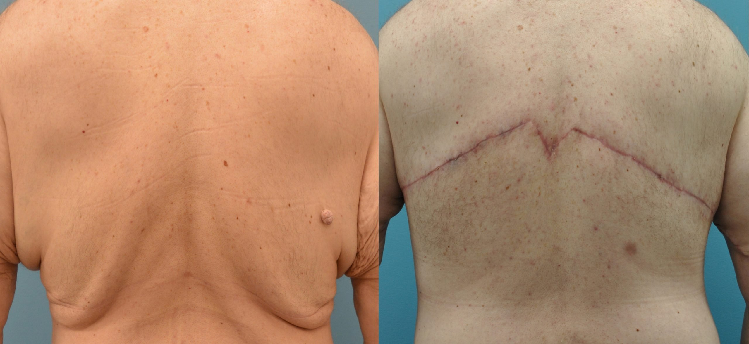 51-year-old male upper body lift, 3 months after surgery, back view