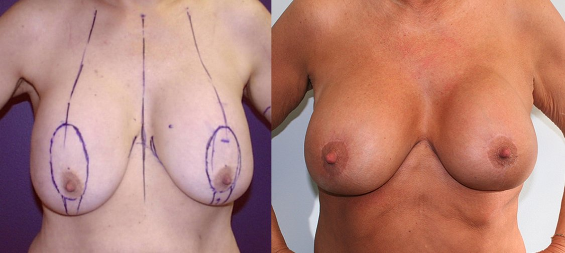 56-year-old breast lift augmentation,13 years, front
