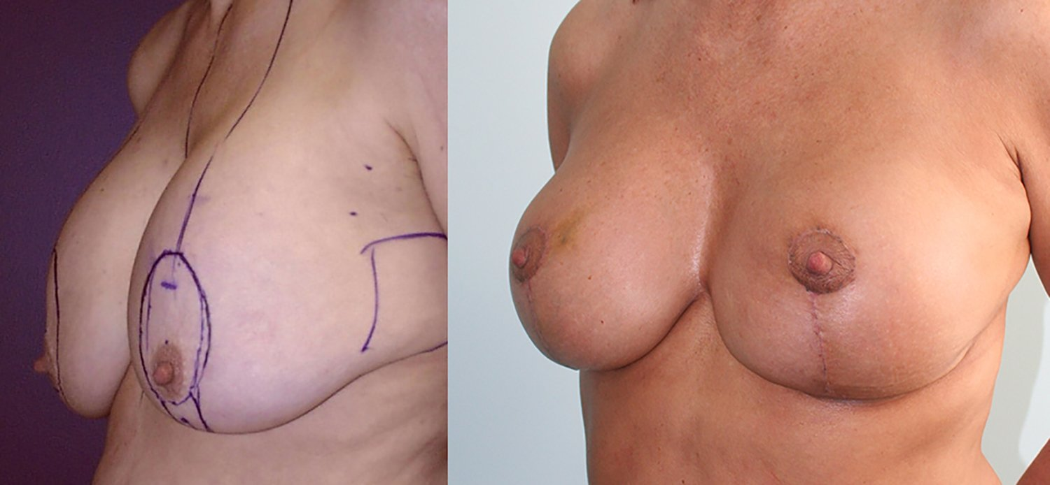56-year-old breast lift augmentation,13 years, oblique