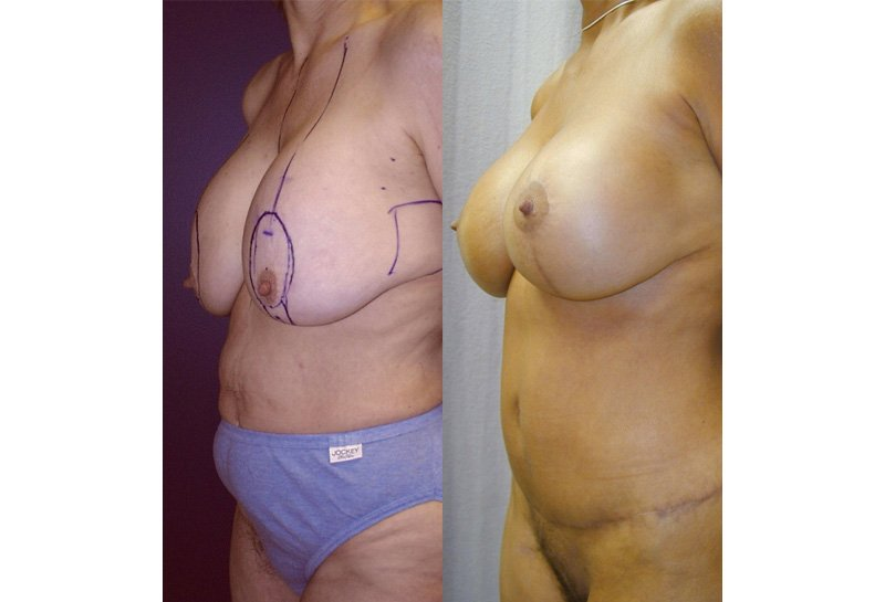 56-year-old breast lift augmentation abdominoplasty lower body lift 9 months oblique view