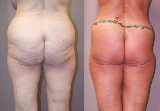 56-year-old lower body lift 28 months back view