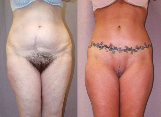56-year-old lower body lift abdominoplasty 28 months front view