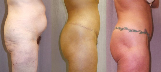 56-year-old lower body lift abdominoplasty 8 and 28 months side view