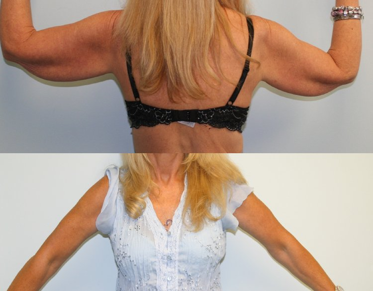 57-year-old brachioplasty before and after, 14 months