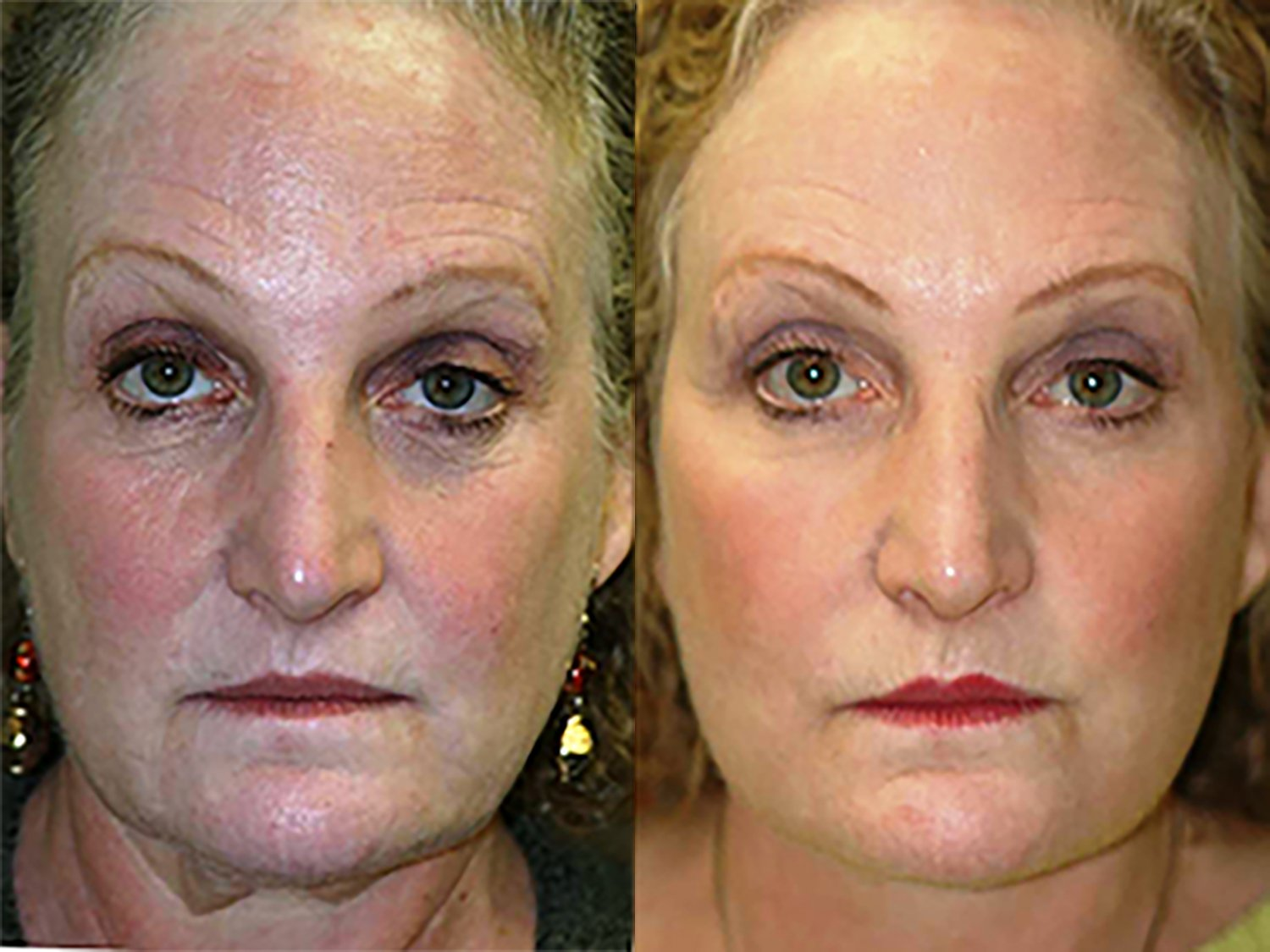 59 year-old face-lift, submental plication of platysma muscles, endoscopic browlift, laser lower eyelids and lateral canthoplasty