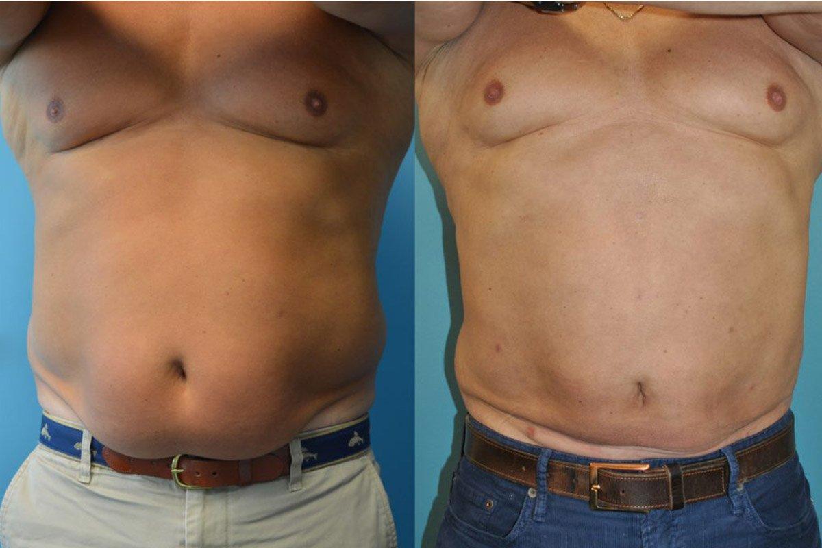 6.Liposuction-Men (1)