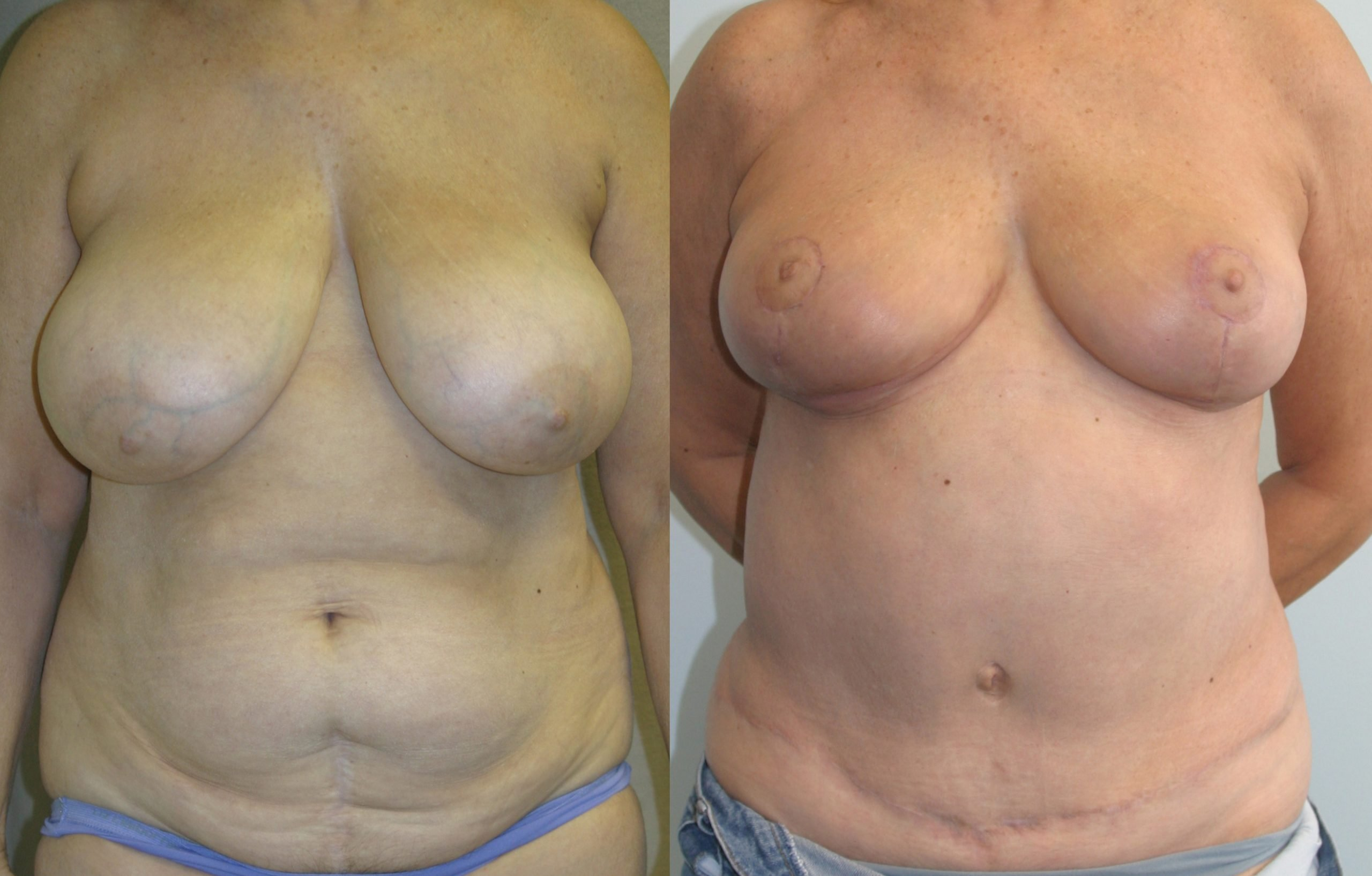 62-year-old tummy tuck one year liposuction back,, breast reduction 3 months front