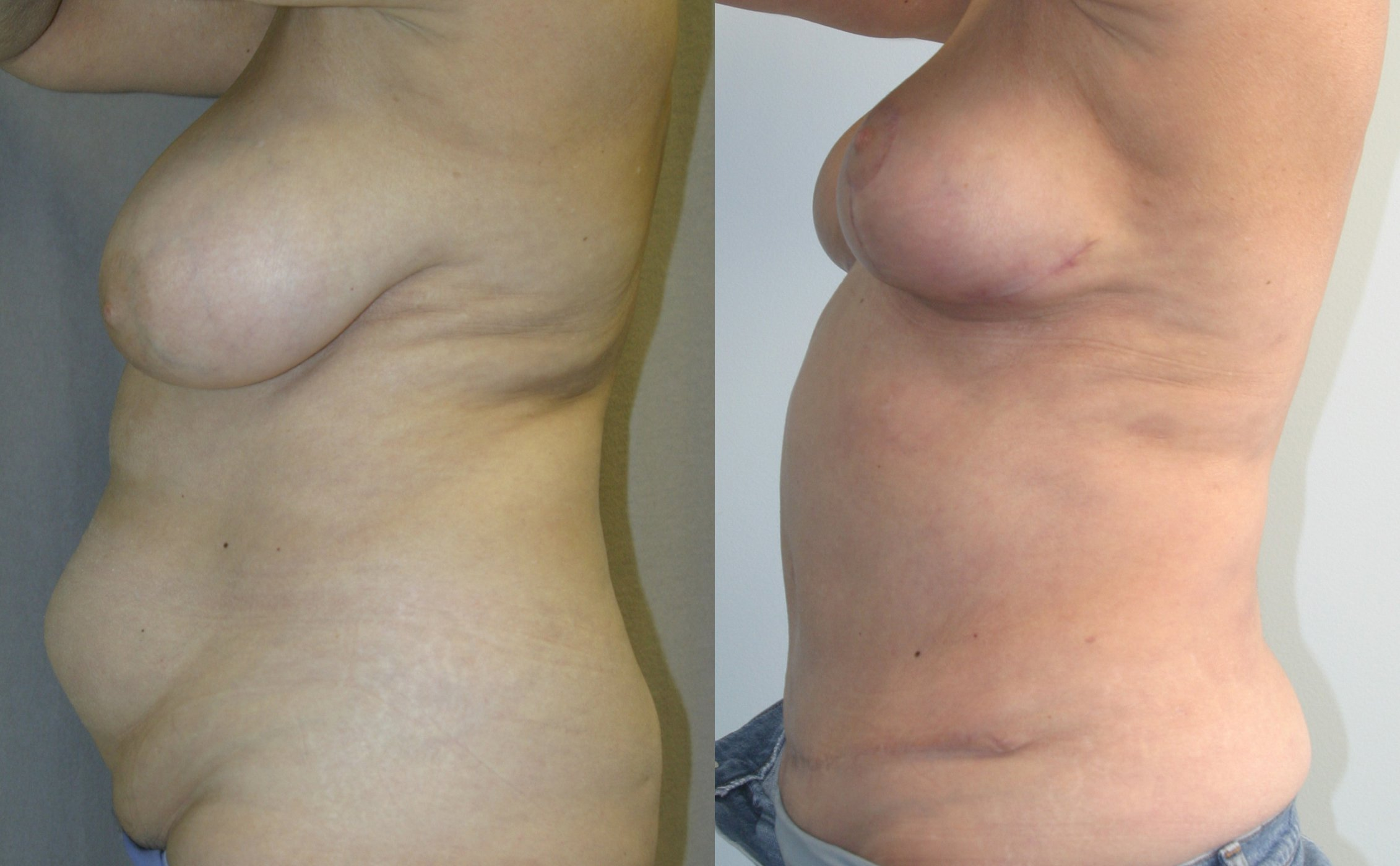 62-year-old tummy tuck one year liposuction back,, breast reduction 3 months left side