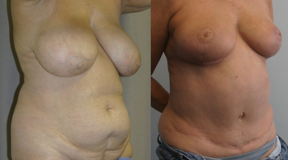 62-year-old tummy tuck one year liposuction back,, breast reduction 3 months right oblique