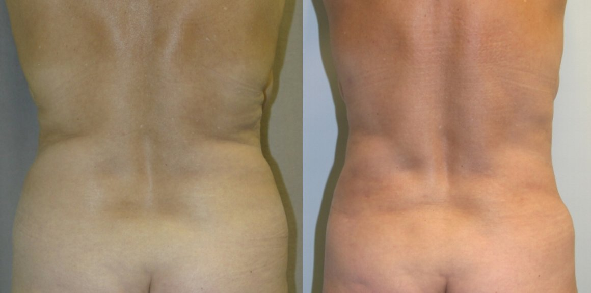 62-year-old tummy tuck one year liposuction back
