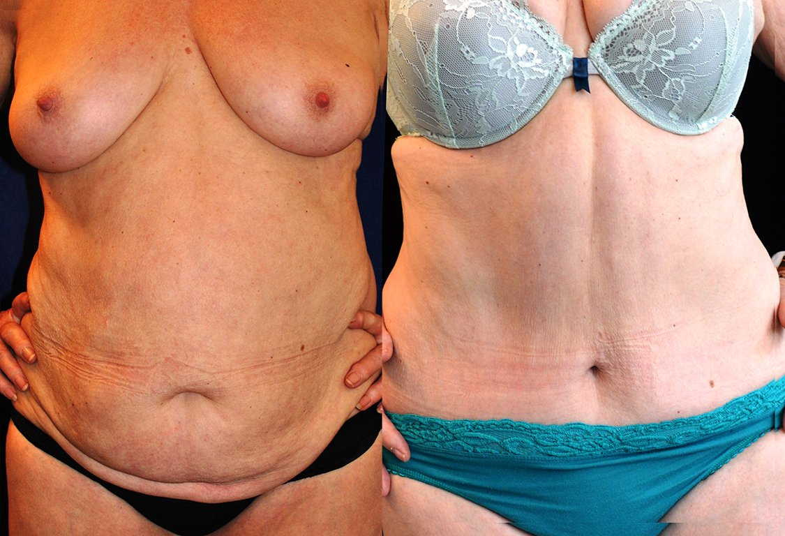 65-year-old abdominoplasty, front