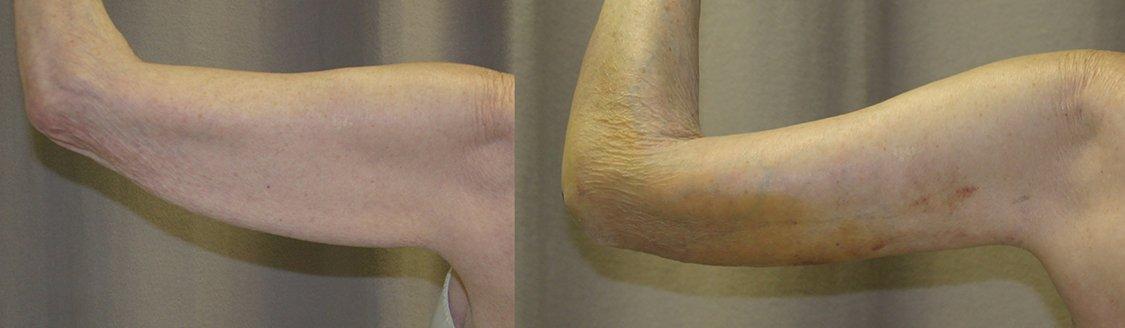 77-year-old brachioplasty 8 days left arm back