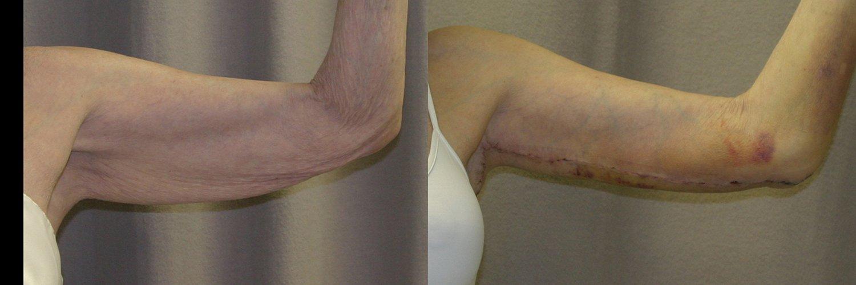 77-year-old brachioplasty 8 days left arm front