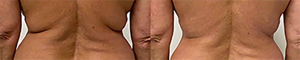 Skin tightening back