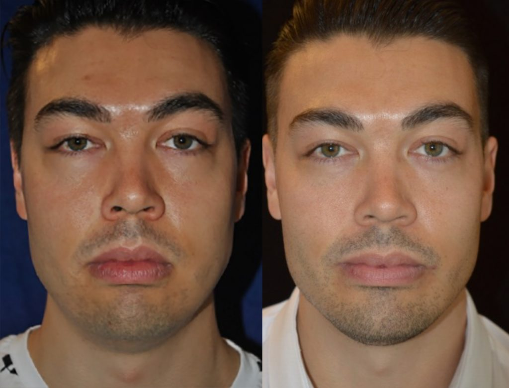 Buccal fat excision and square jaw implant