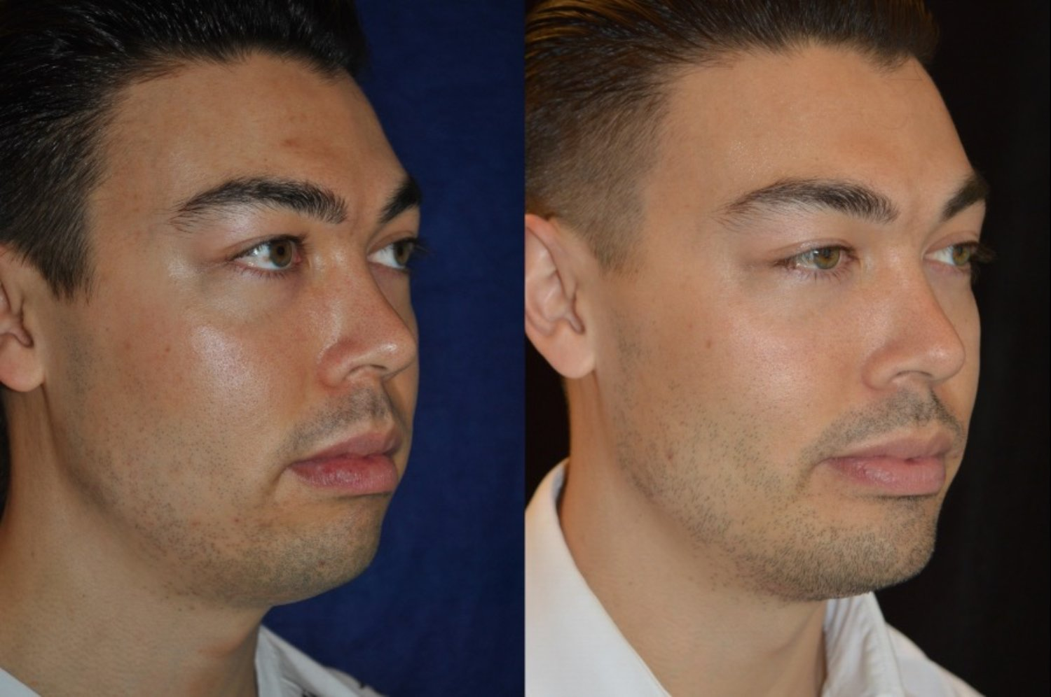 Male square chin implant & buccal fat pad removal, oblique