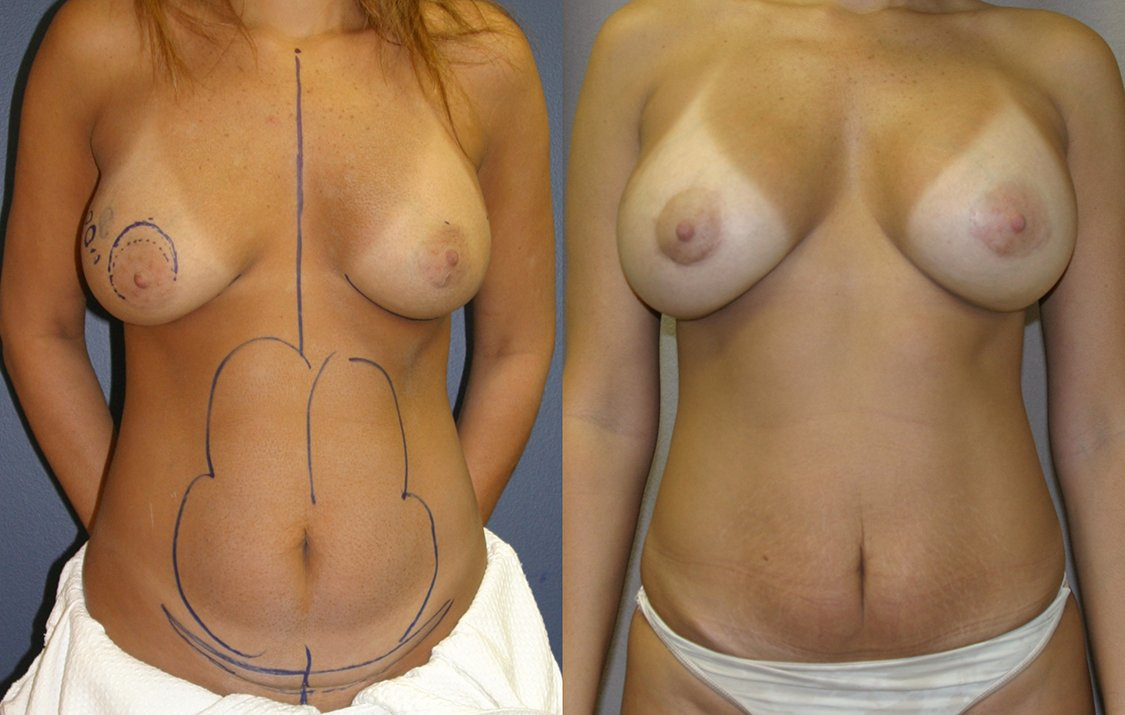 Mommy Makeover. Liposuction abdomen, mini tummy tuck with breast augmentation, one year, front