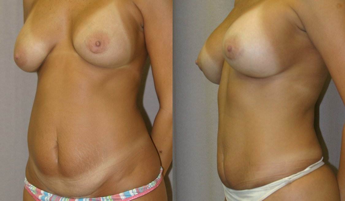 Mommy Makeover. Liposuction abdomen, mini tummy tuck with breast augmentation, one year, oblique