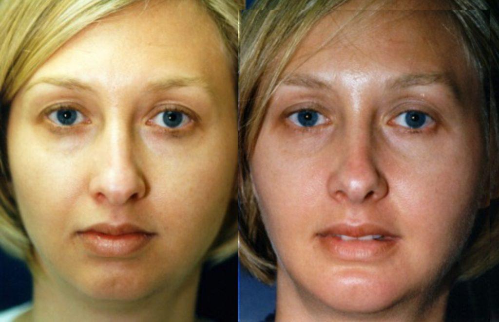 Patient 3-chin implant & rhinoplasty