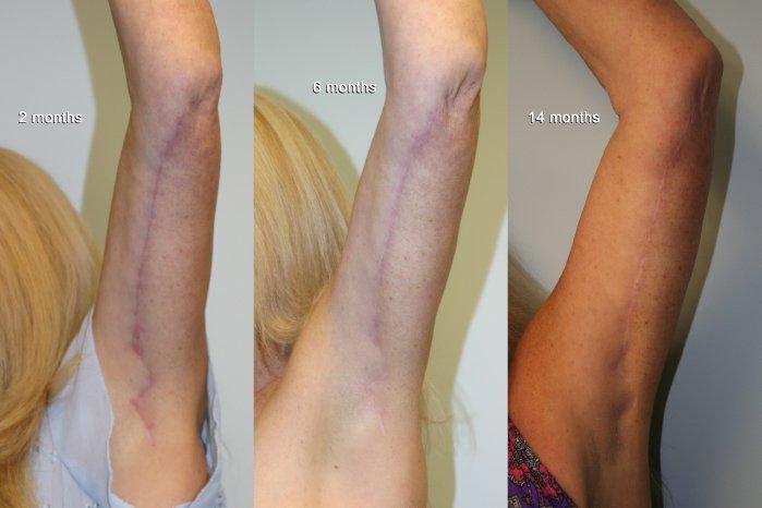 Scar maturation brachioplasty, left 2 months , middle 6 months, right 14 months