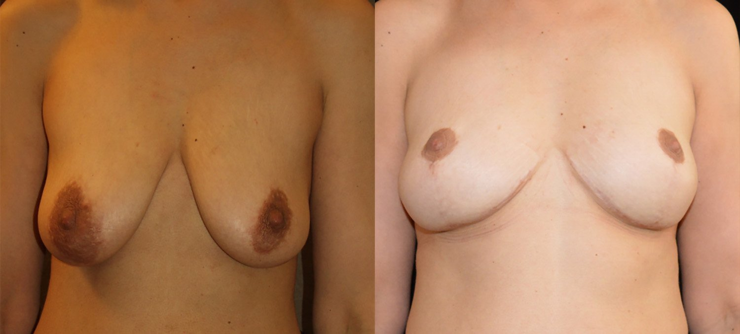 43-year-old breast lift reduction, 5 years  front