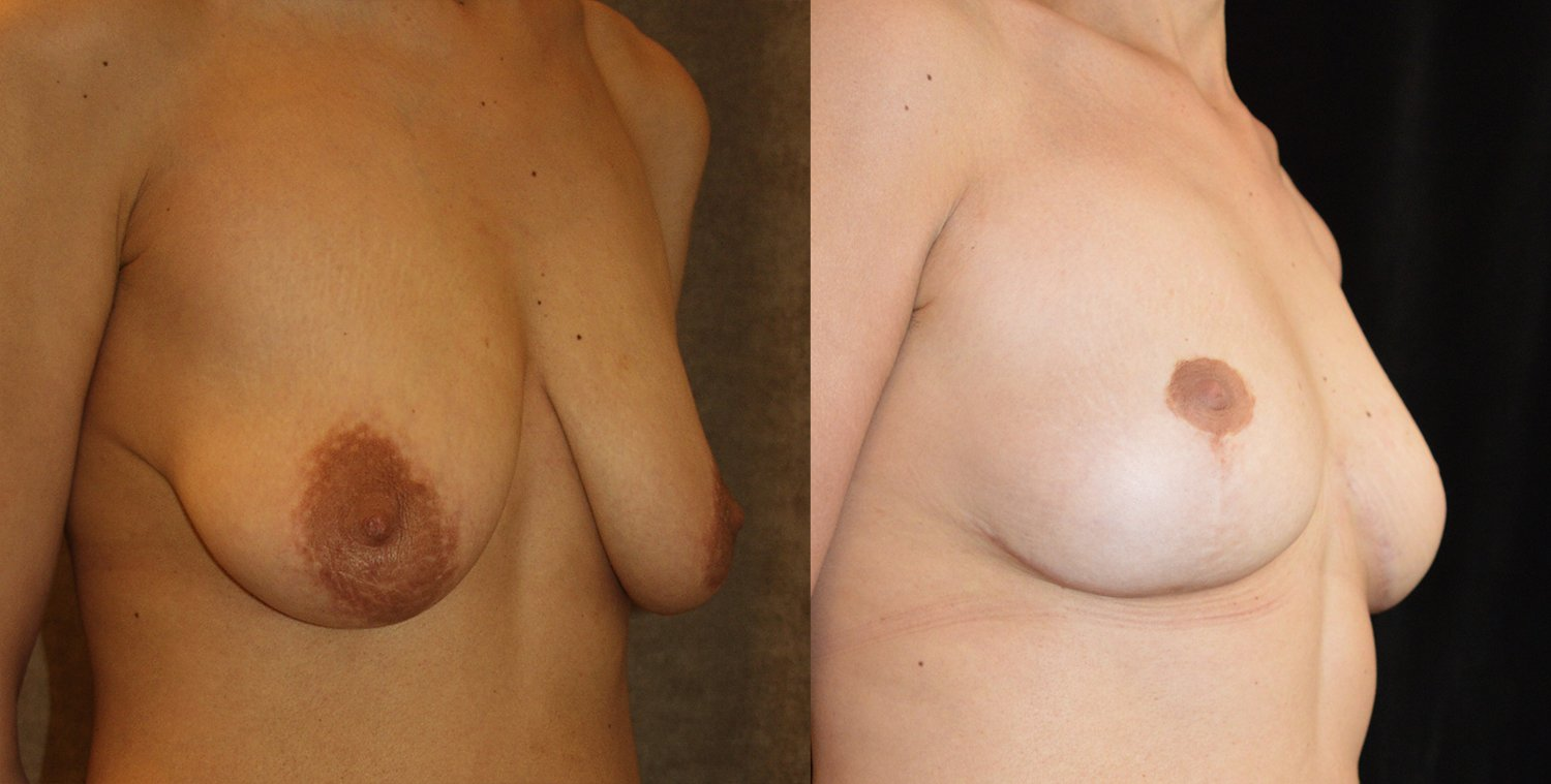43-year-old breast lift reduction, 5 years  oblique