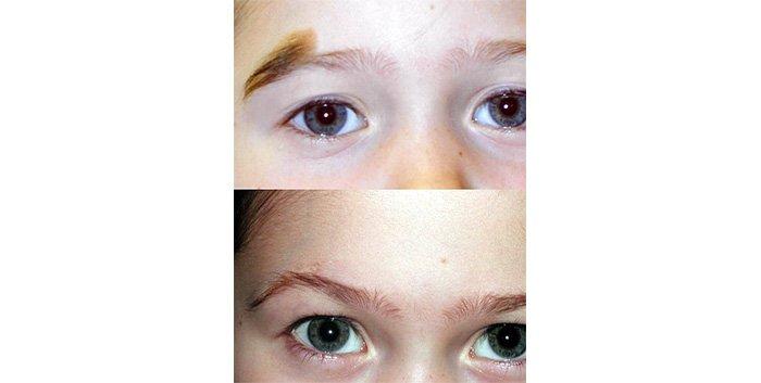 Birthmark (mole) right eyebrow
