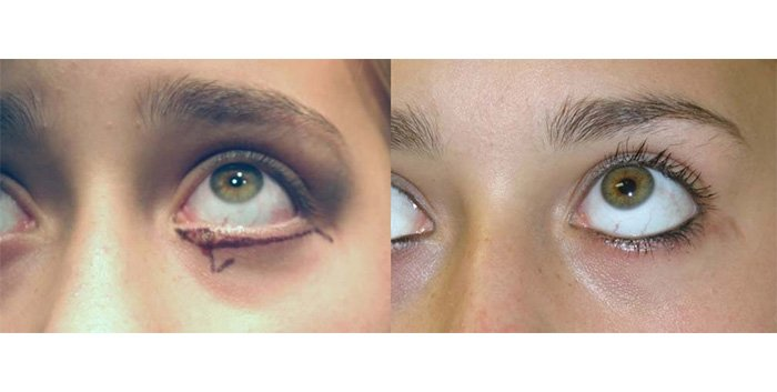 Mole excision lower eyelid with skin advancement